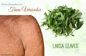 35 home remes for tinea versicolor