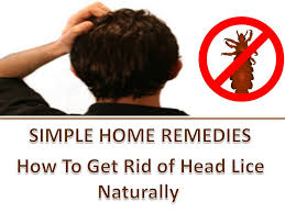 how to get rid of head lice natural