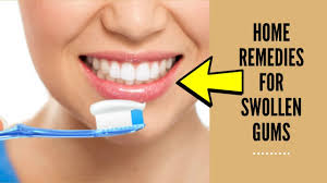 home remes for swollen gums how to