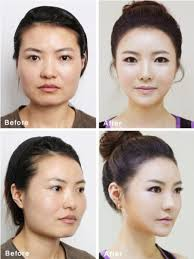 after photos of korean plastic surgery