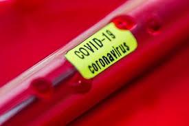Resultado de imagem para coronavirus na bahia