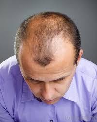 best hair spray for hair loss