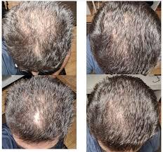 regrow your hair naturally no random
