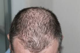 regrowth ses after a hair transplant