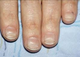6 signs your fingernails are telling