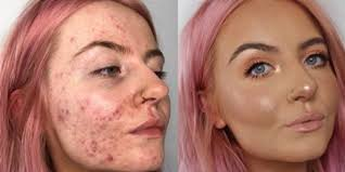 best makeup for scars on face