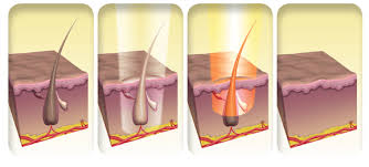 laser hair removal american laser med