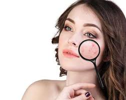 pimples and prevent acne naturally