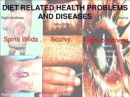 ppt spina bifida scurvy powerpoint