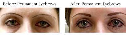 permanent cosmetics surgery grand