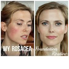 my rosacea foundation routine makeup