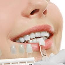 Dental Veneers & Laminates | Porcelain Veneers Los Angeles, CA