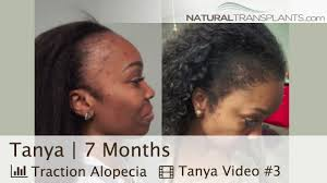 best female hair transplant before and