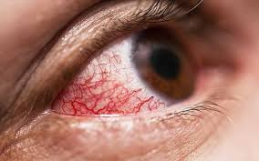 when to be concerned about a bleeding eye