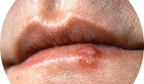 herpes hsv 1 and hsv 2 causes