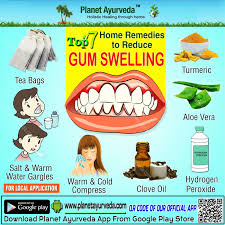 top 7 home remes to reduce gum