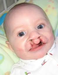 bilateral cleft lip and palate nam