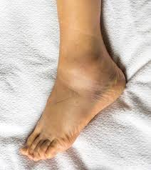 16 effective home remes for swollen feet