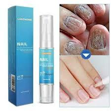 euconychia herbal nail fungus treatment