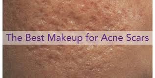 cover acne scars with acne scar makeup