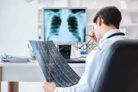 Image result for doctor looking at xray