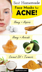 homemade face mask for acne and
