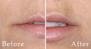 dallas lip augmentation clinique