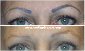 eyebrow tattoo removal before and after