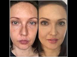 cover melasma and hyperpigmentation