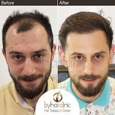 hair transplant center in istanbul turkey