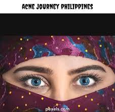 acne journey