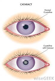 some treatments for blurry vision
