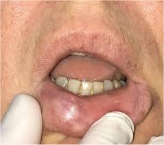 granulomatous reaction to dermal filler