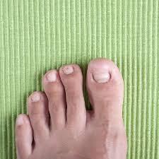 have an ingrown toenail we can help