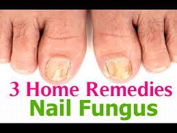 nail fungus toenail fungus treatment