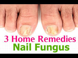 nail fungus toenail fungus treatment