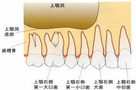 第461回 上顎洞炎 | 岡山市の審美・矯正歯科・インプラントは石井 ...