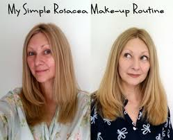 my simple rosacea make up routine