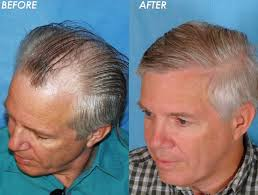 effective treatment for hair loss