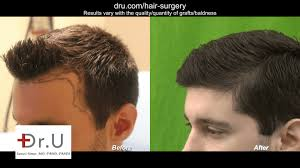 los angeles young age hair transplant
