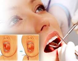 top 20 affordable mouth cancer hospital