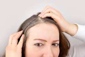 can you prevent grey hair experts