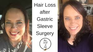 hair loss after weight loss surgery