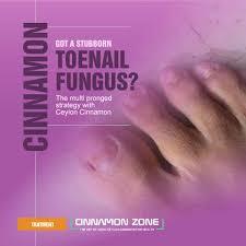 toe nail fungus cure with cinnamon