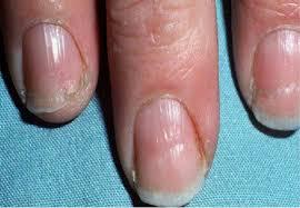 2018 nails and thyroid h pylori