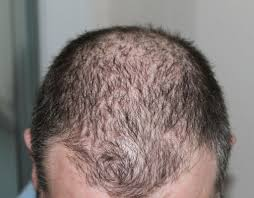 how spironolactone help in hair loss