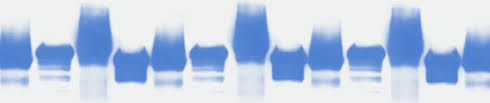 western blot sle preparation abcam