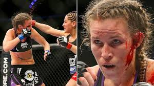 How The UFC's Leslie Smith Is Recovering From An Exploded Cauliflower Ear