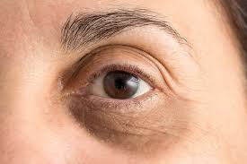 Dark Circles, Their Prevention and Home Remedies – Sonix News