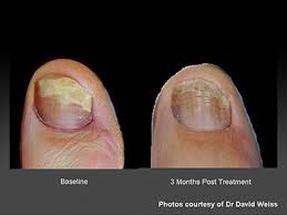 nail laser fungus infection